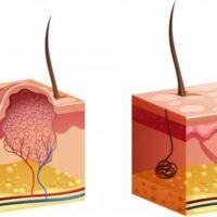 Remedios Naturales para las Verrugas